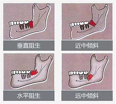 智齿是人类进化的残余物 四类智齿请及时拔除